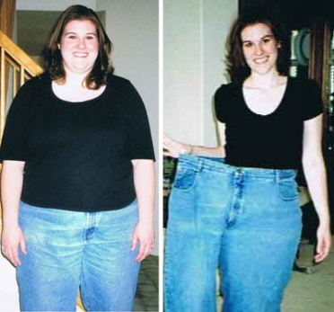Medi weight loss dietary supplements picture 2